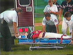 pitcher struck in head / medically induced coma