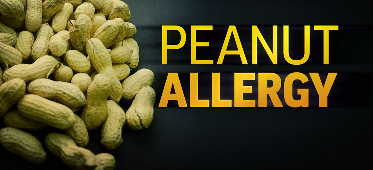 peanut allergy Even babies with the highest risk of a peanut allergy should get a dose of peanut, because an early taste can prevent allergies later, doctors say.